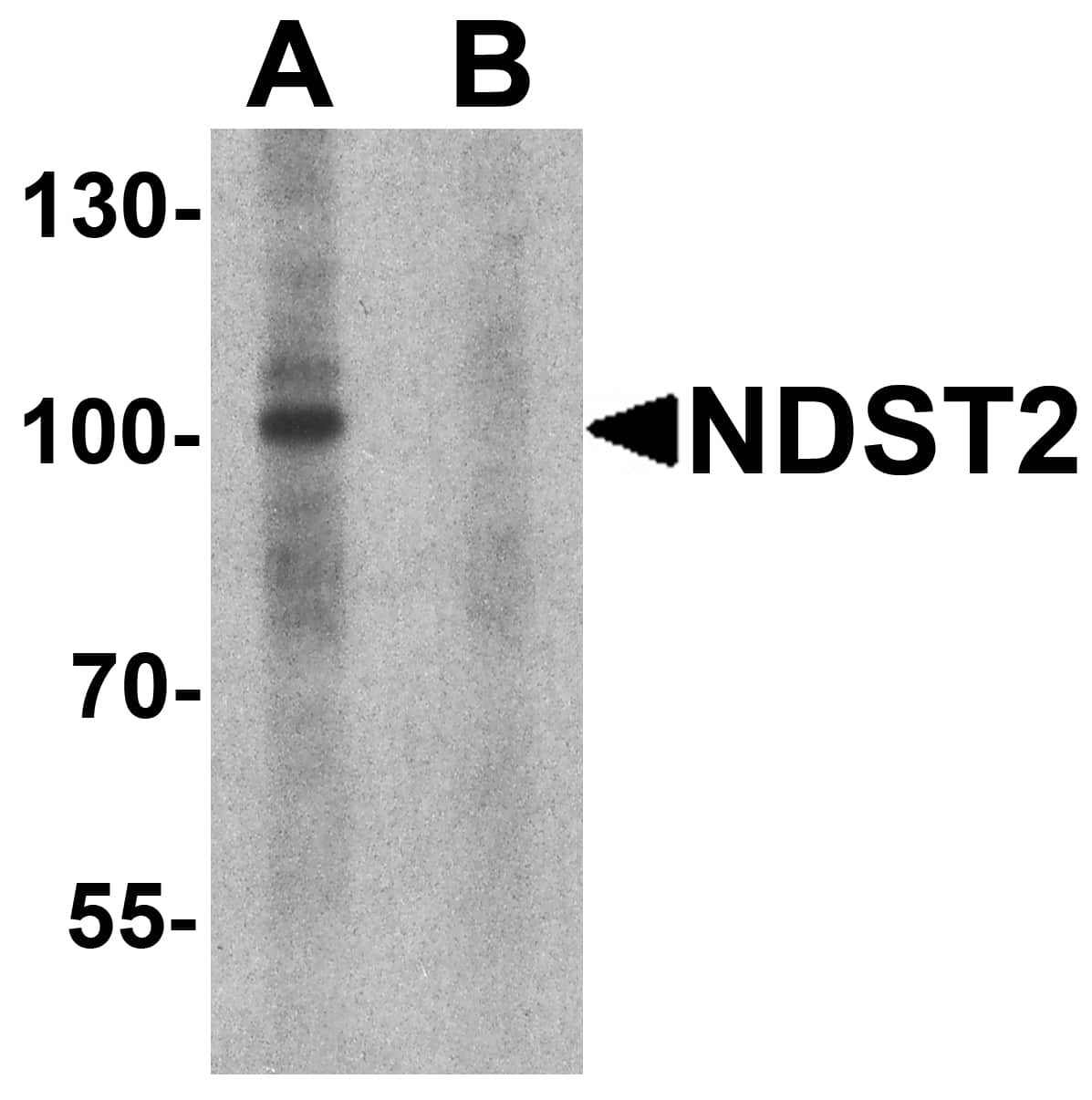 NDST2 Antibody in Western Blot (WB)