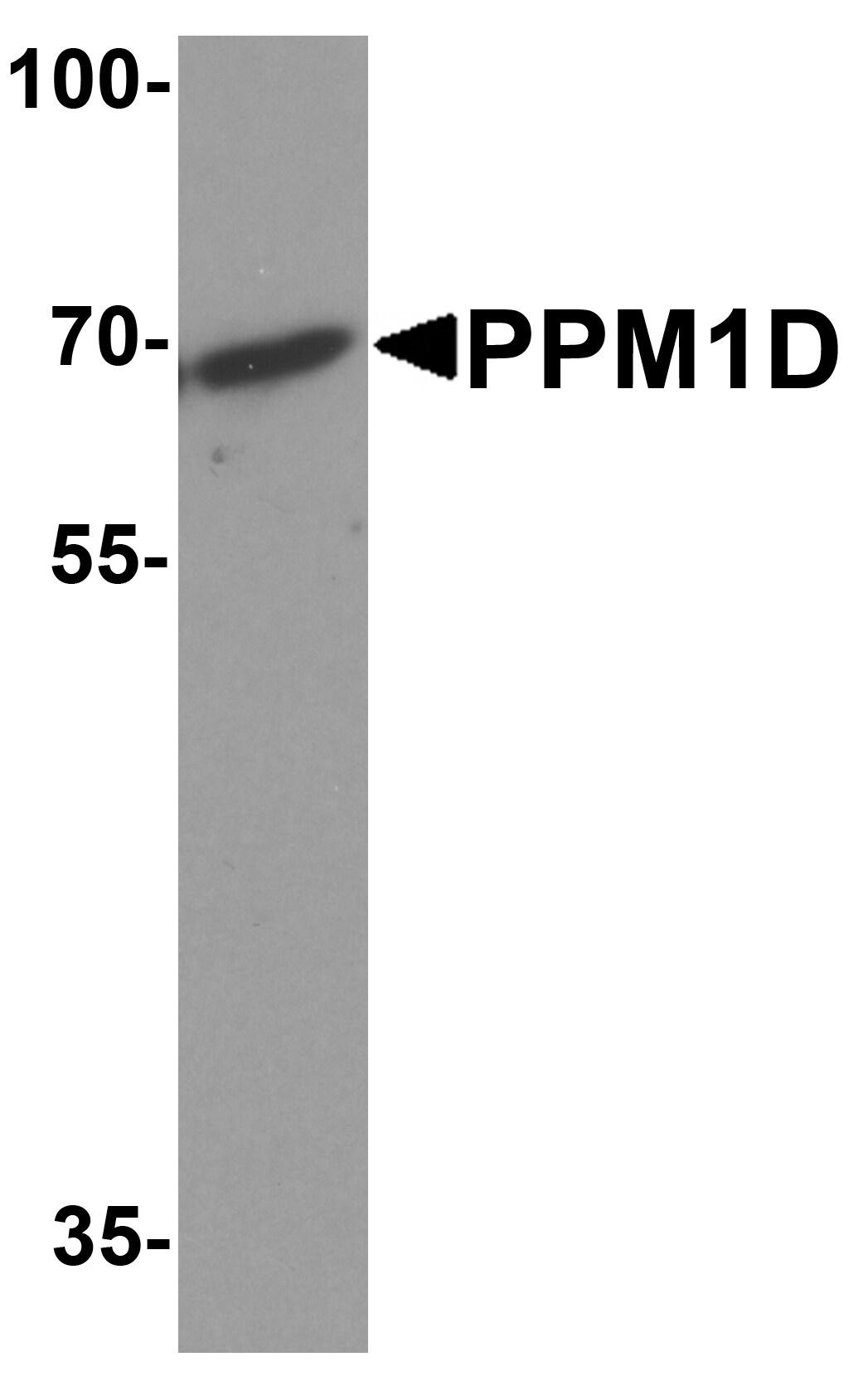 PPM1D Antibody in Western Blot (WB)