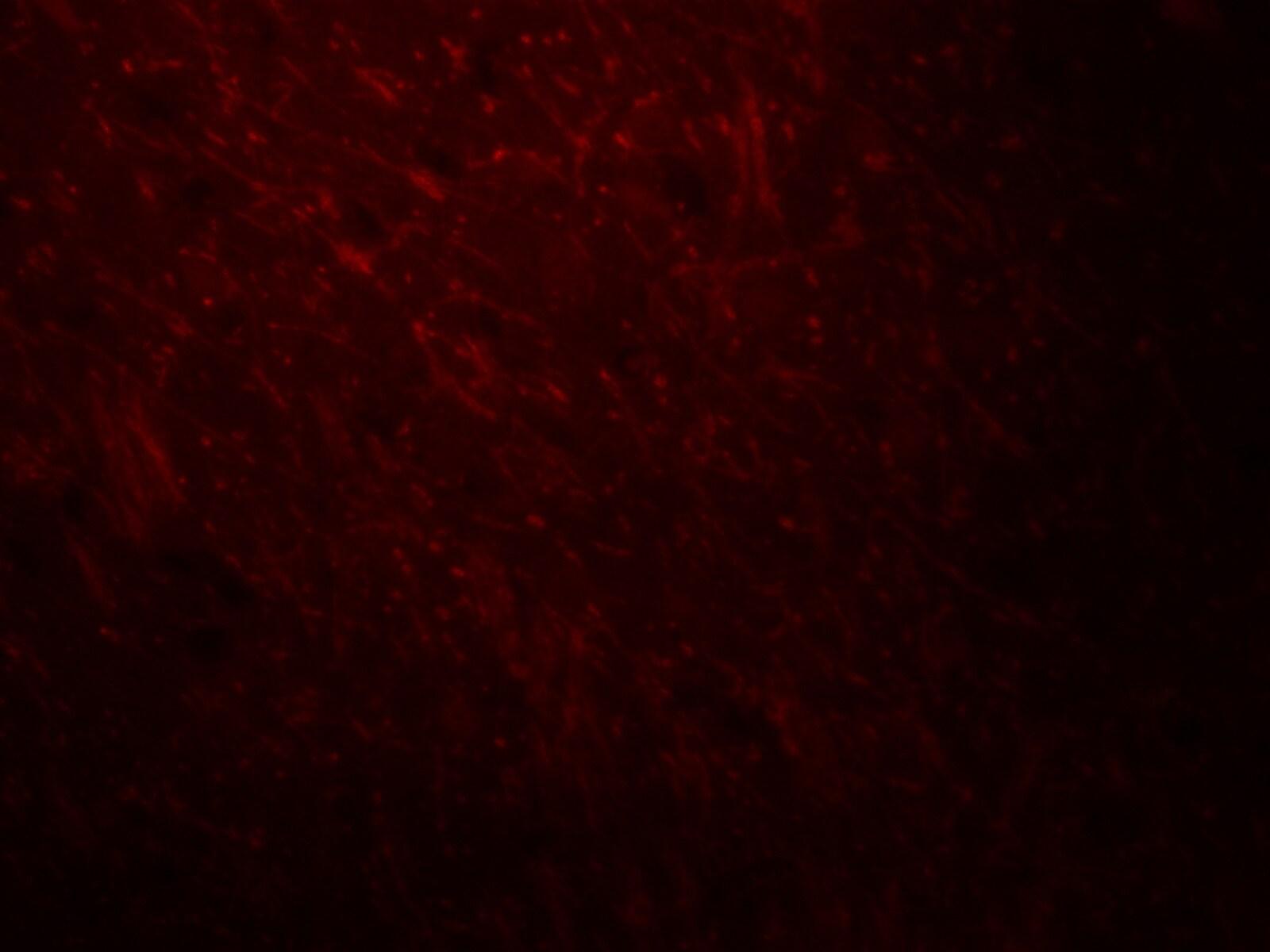 ARID1A Antibody in Immunofluorescence (IF)