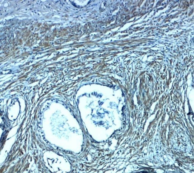 PMEPA1 Antibody in Immunohistochemistry (Paraffin) (IHC (P))