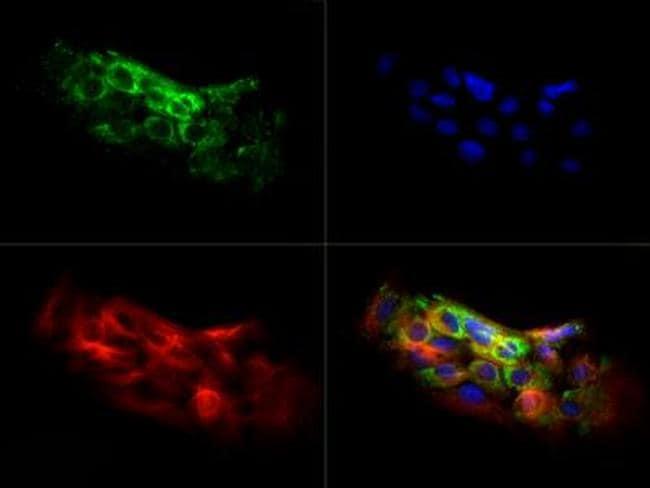 NLRC4 Antibody in Immunocytochemistry (ICC/IF)