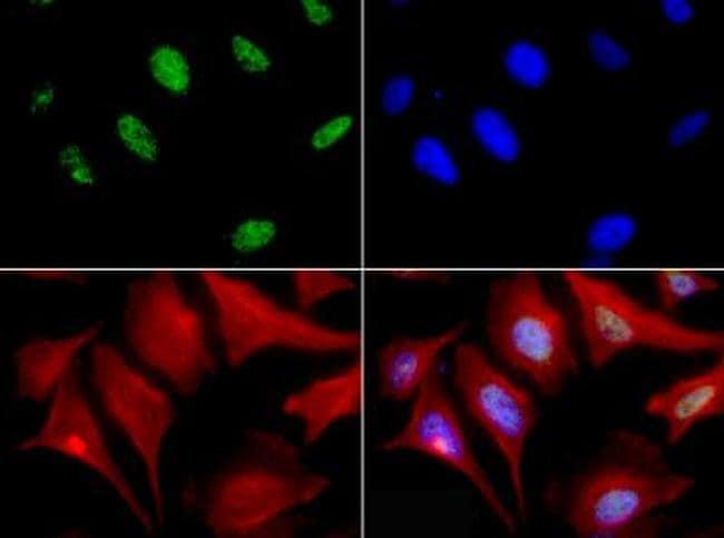 MBD4 Antibody in Immunofluorescence (IF)