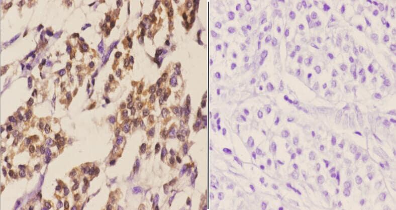 C/EBP delta/epsilon Antibody in Immunohistochemistry (Paraffin) (IHC (P))
