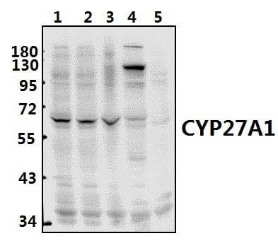 CYP27A1 Antibody in Western Blot (WB)
