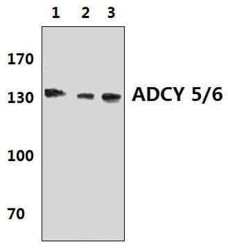 Adenylate Cyclase 5/6 Antibody in Western Blot (WB)