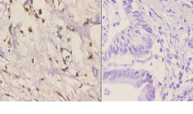 RAD51C Antibody in Immunohistochemistry (Paraffin) (IHC (P))