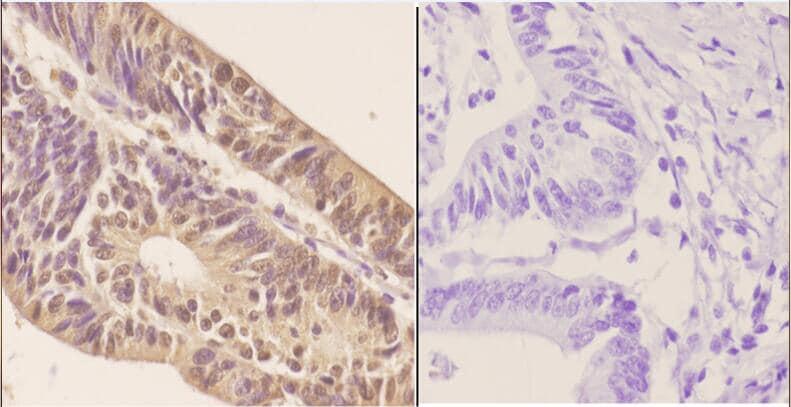 ZNF148 Antibody in Immunohistochemistry (Paraffin) (IHC (P))