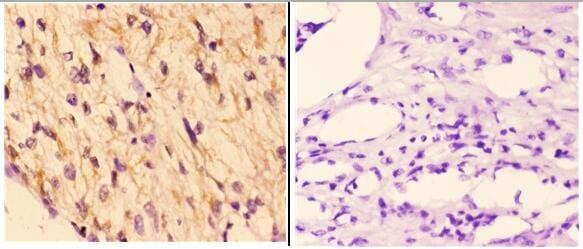 RAD51B Antibody in Immunohistochemistry (Paraffin) (IHC (P))
