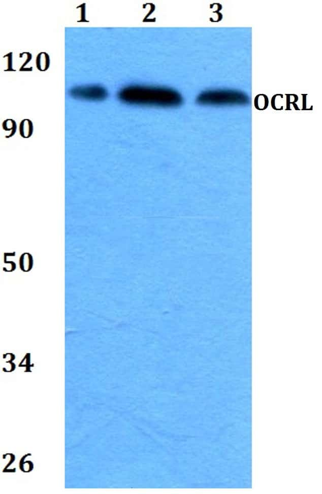 OCRL Antibody in Western Blot (WB)