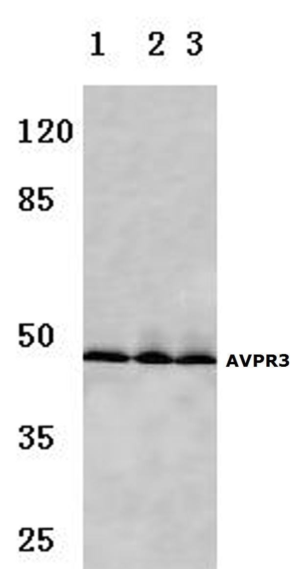 AVPR1B Antibody in Western Blot (WB)
