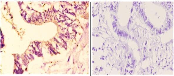 CYP7B1 Antibody in Immunohistochemistry (Paraffin) (IHC (P))