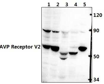 AVPR2 Antibody in Western Blot (WB)