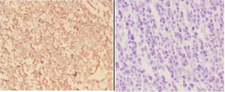 Arp3 Antibody in Immunohistochemistry (Paraffin) (IHC (P))