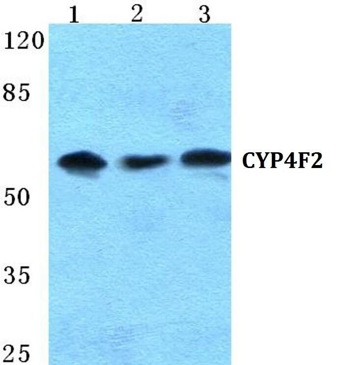 CYP4F2 Antibody in Western Blot (WB)