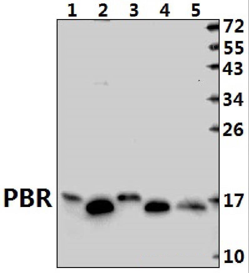 TSPO Antibody in Western Blot (WB)