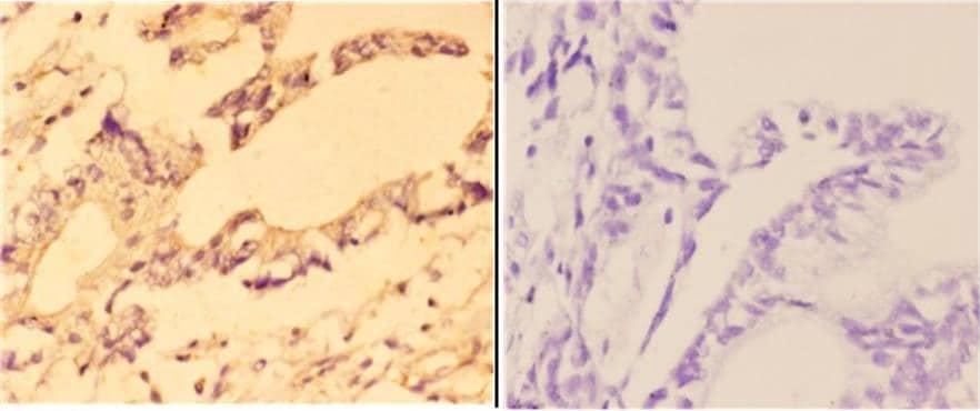 MRP8 Antibody in Immunohistochemistry (Paraffin) (IHC (P))