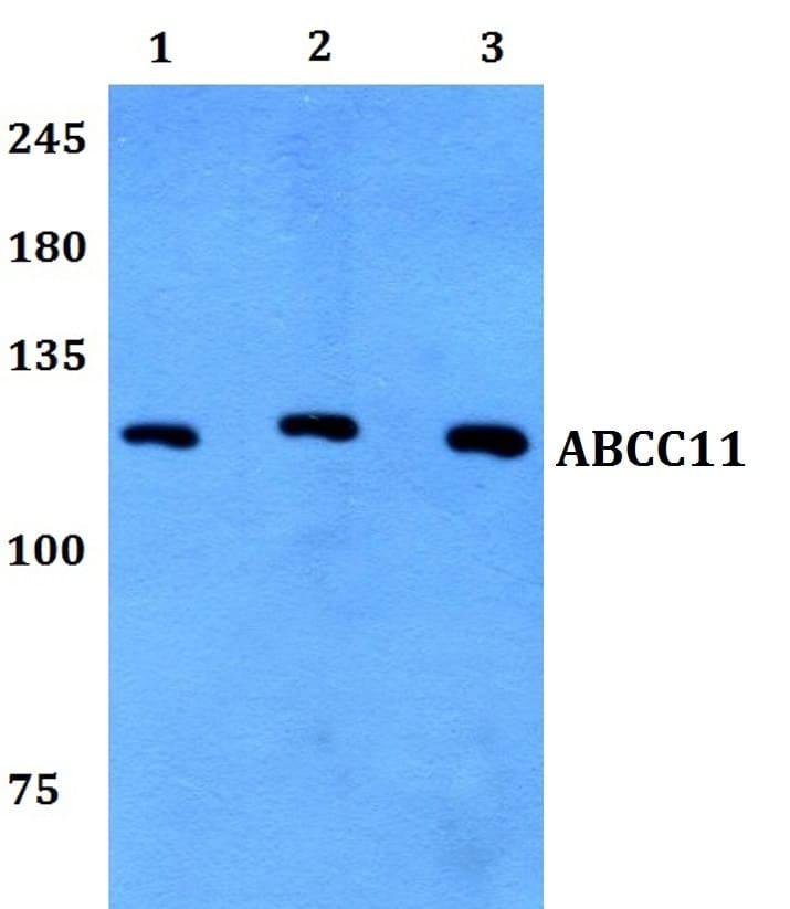 MRP8 Antibody in Western Blot (WB)