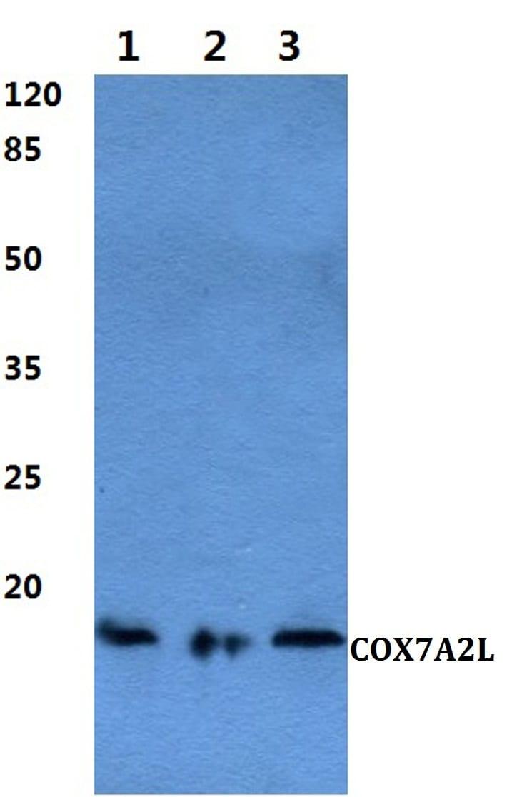 COX7A2L Antibody in Western Blot (WB)