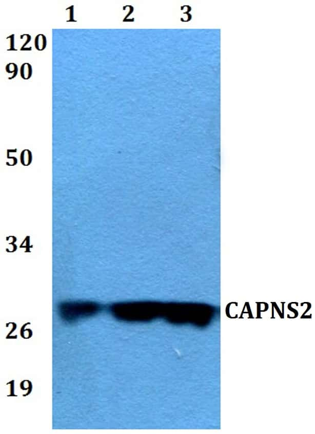 CAPNS2 Antibody in Western Blot (WB)