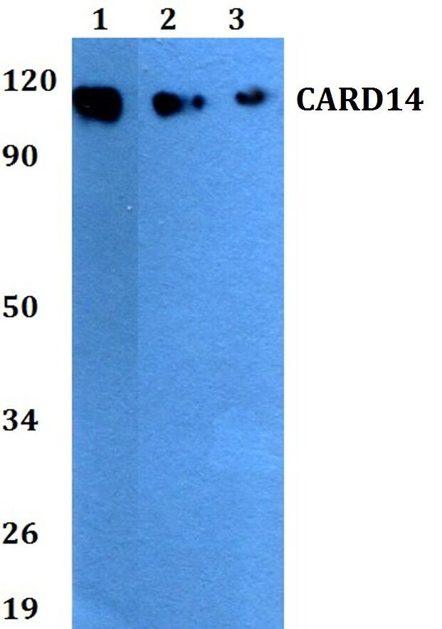CARD14 Antibody in Western Blot (WB)