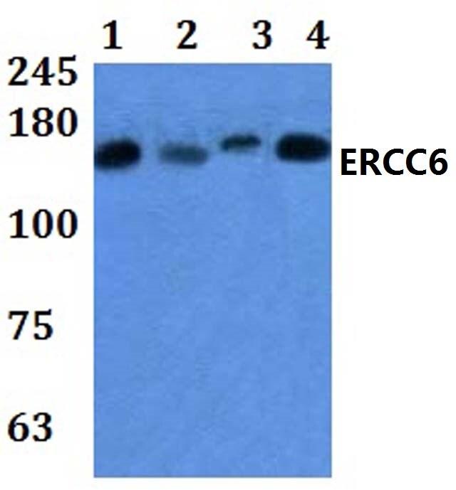 CSB Antibody in Western Blot (WB)