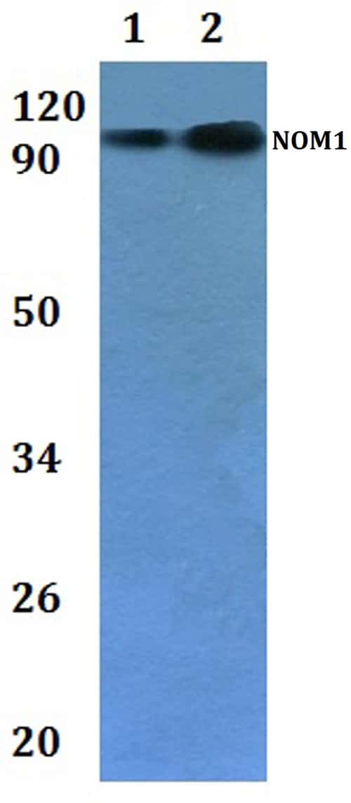 NOM1 Antibody in Western Blot (WB)