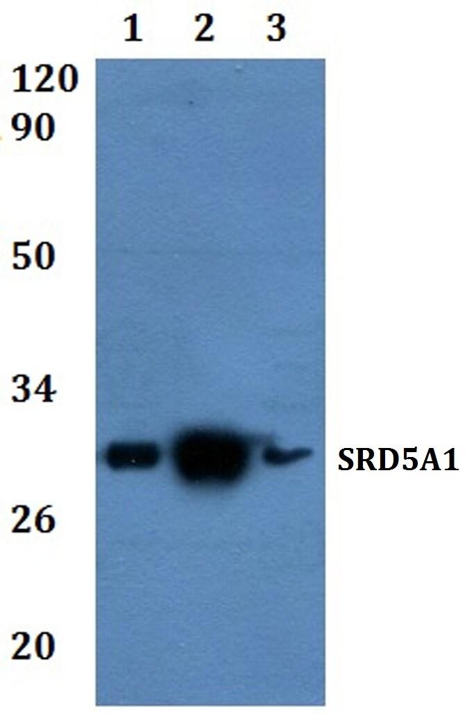 SRD5A1 Antibody in Western Blot (WB)