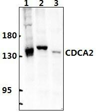 CDCA2 Antibody in Western Blot (WB)