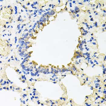 Calumenin Antibody in Immunohistochemistry (Paraffin) (IHC (P))