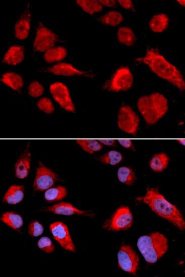 CBS Antibody in Immunofluorescence (IF)
