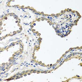COLEC11 Antibody in Immunohistochemistry (Paraffin) (IHC (P))