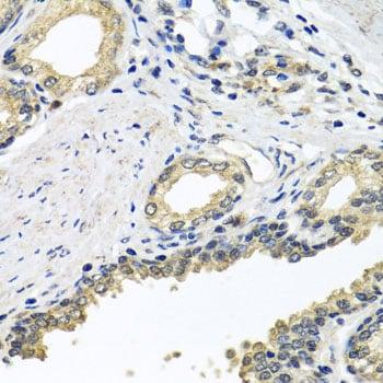 Unc18-2 Antibody in Immunohistochemistry (Paraffin) (IHC (P))