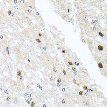 YTHDF3 Antibody in Immunohistochemistry (Paraffin) (IHC (P))