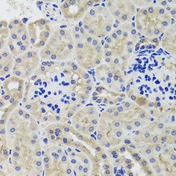 HK3 Antibody in Immunohistochemistry (Paraffin) (IHC (P))