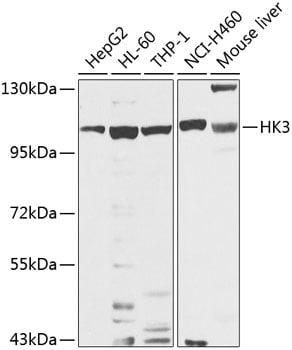 HK3 Antibody in Western Blot (WB)