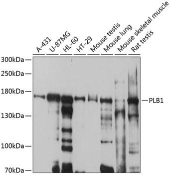 PLB1 Antibody in Western Blot (WB)