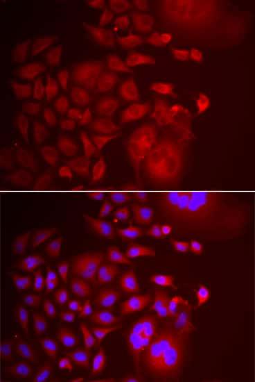 TRAPPC10 Antibody in Immunofluorescence (IF)