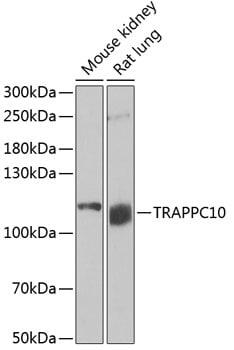 TRAPPC10 Antibody in Western Blot (WB)