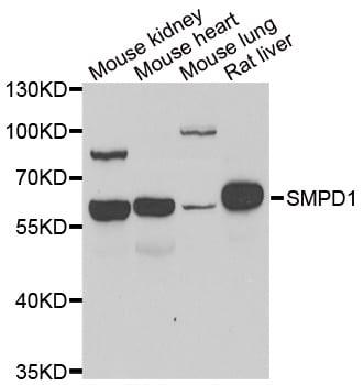 ASM Antibody in Western Blot (WB)