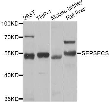 SLA/LP Antibody in Western Blot (WB)