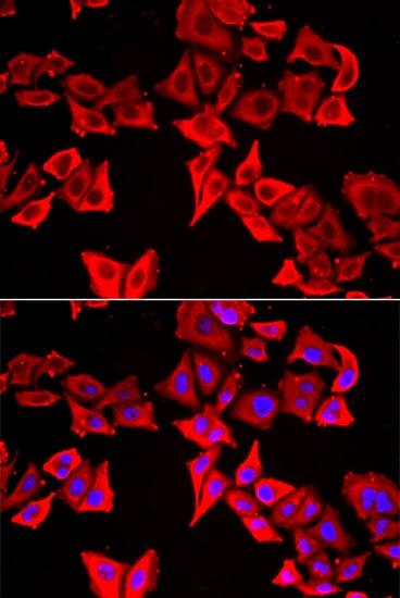 THRSP Antibody in Immunocytochemistry (ICC/IF)