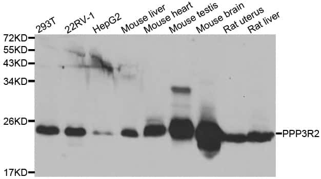 PPP3R2 Antibody in Western Blot (WB)