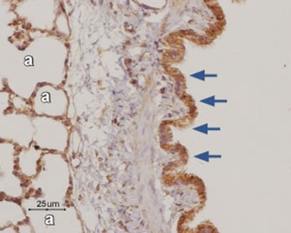 ADORA3 Antibody in Immunohistochemistry (Paraffin) (IHC (P))