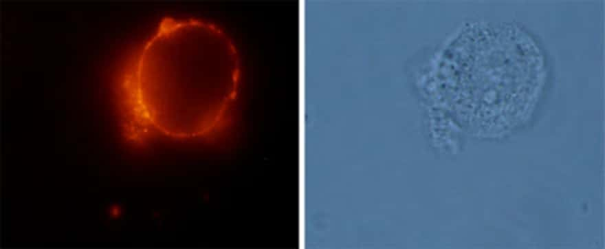 AGTR2 (extracellular) Antibody in Immunocytochemistry (ICC)