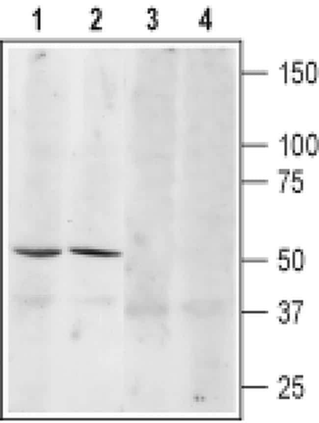 beta-3 Adrenergic Receptor (extracellular) Antibody in Western Blot (WB)