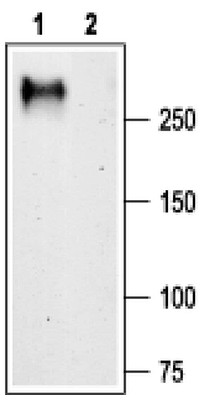 CaV3.1 Antibody in Western Blot (WB)