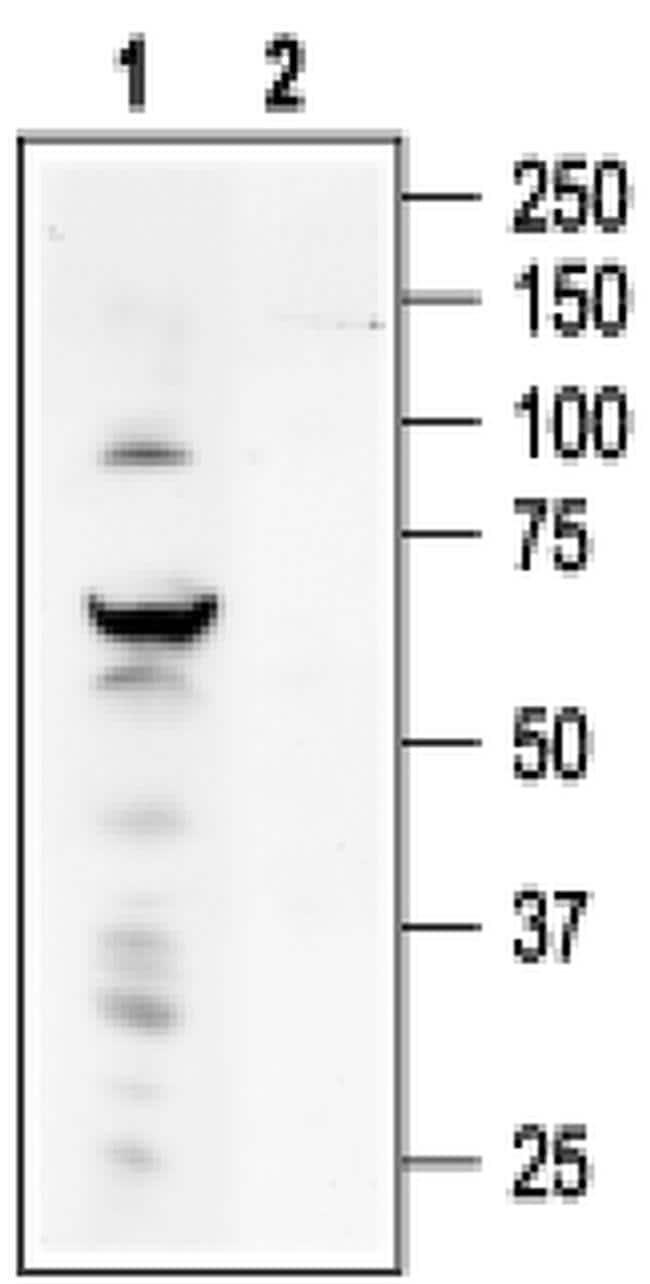 TRPV4 Antibody in Western Blot (WB)