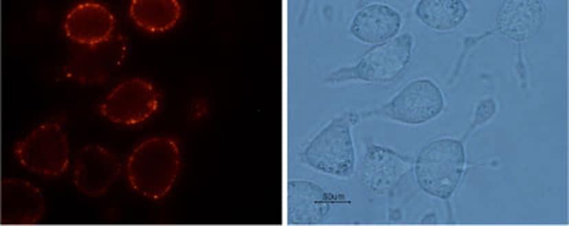 TRPV2 (extracellular) Antibody in Immunocytochemistry (ICC/IF)