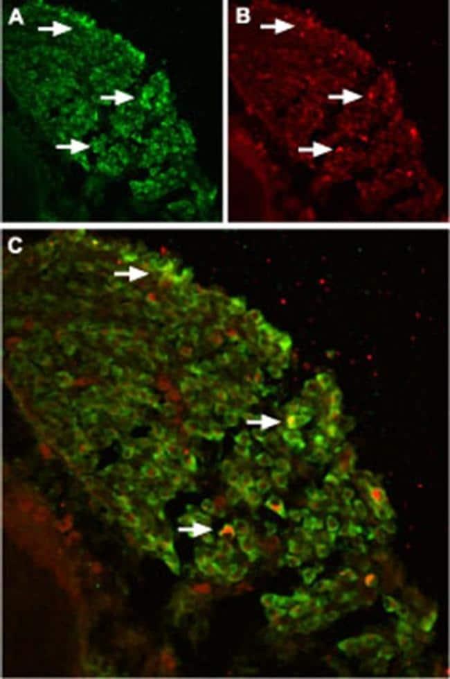 TRPV2 (extracellular) Antibody in Immunohistochemistry (IHC)