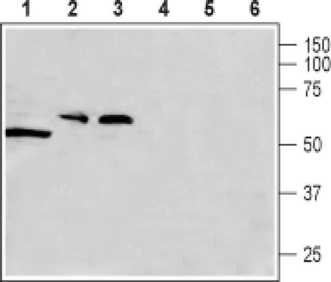 CACNG8 Antibody in Western Blot (WB)